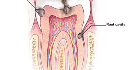 A filling is required to treat the different types of tooth decay