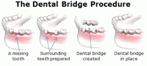 Dental Bridge Procedure Diagram