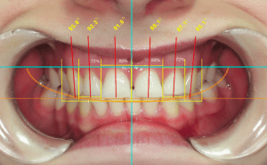Composite Dental Analysis