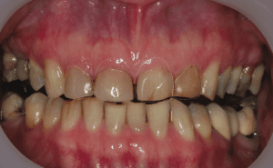 Ideal Tooth Outline