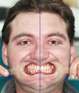 Dental Midline Comparison