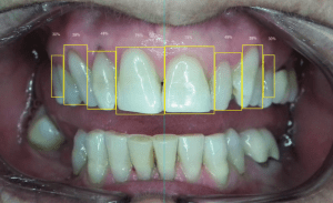 Ideal Tooth Proportion